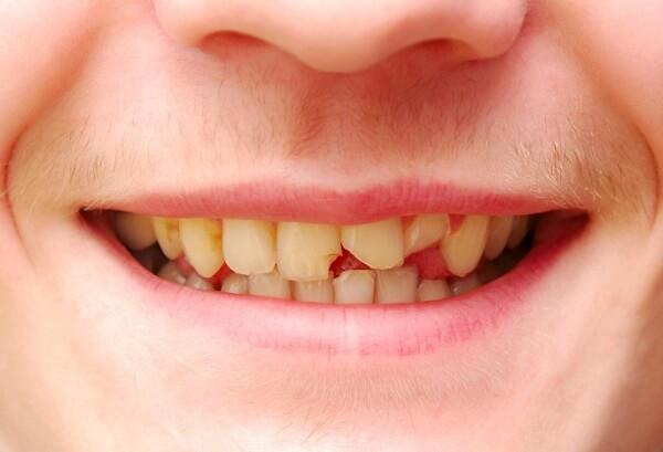 Răng mẻ có mọc lại không?
