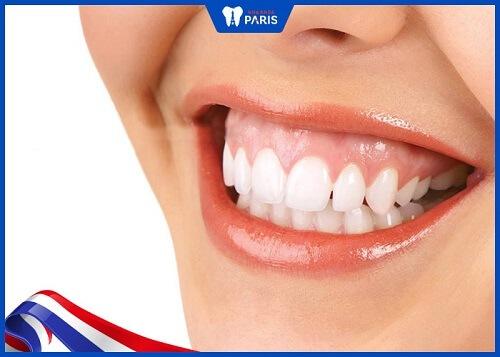 phẫu thuật cười hở lợi giá bao nhiêu