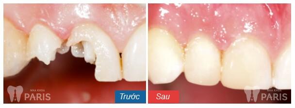 Trồng răng khắc phục tình trạng răng mẻ