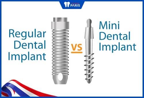 cấy ghép mini implant là gì