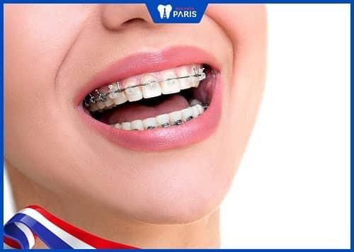 ưu điểm của niềng răng mắc cài sứ