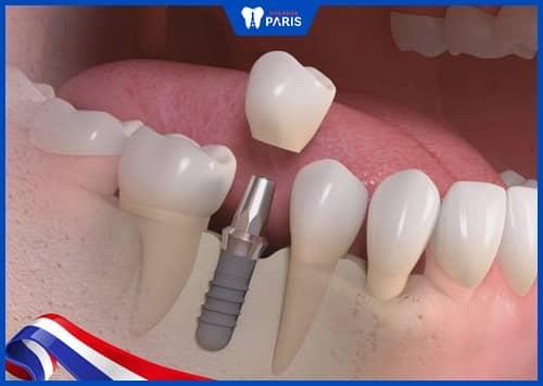 implant tối đa dùng bao nhiêu năm
