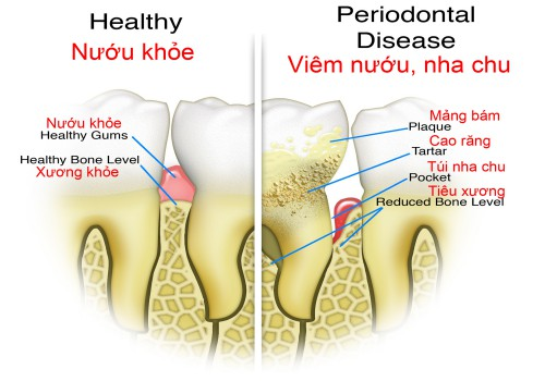 Đau răng hàm có thể dẫn tới viêm nha chu