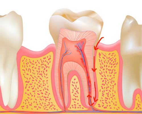 Viêm tủy răng ngược dòng