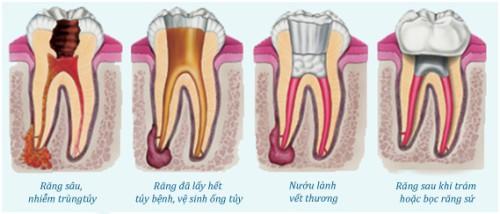 Cách khắc phục viêm tủy răng ngược dòng