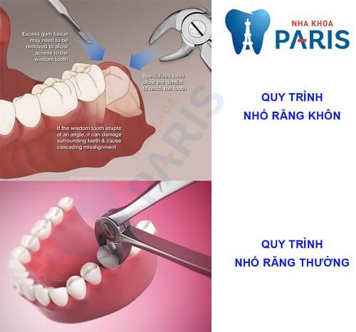 quy trình nhổ răng khôn bị sâu