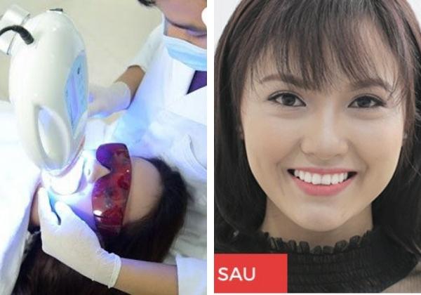 Tẩy trắng răng whitemax hiệu quả hơn hẳn tự tẩy trắng bằng thuốc tại nhà