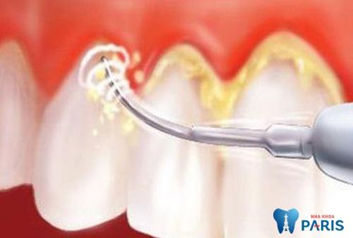 Lấy cao răng an toàn, không cần thực hiện tách nướu