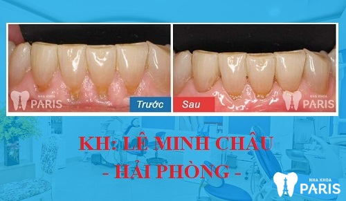 Tình trạng: Coa răng đã biến chứng, gây ra tình trạng tụt lợi chân răng