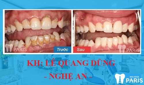 Tình trạng: Cao răng bám nhiều gây chảy máu nướu và viêm nướu độ 1