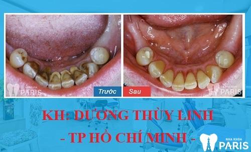 Tình trang: Cao răng chuyển sang màu đen