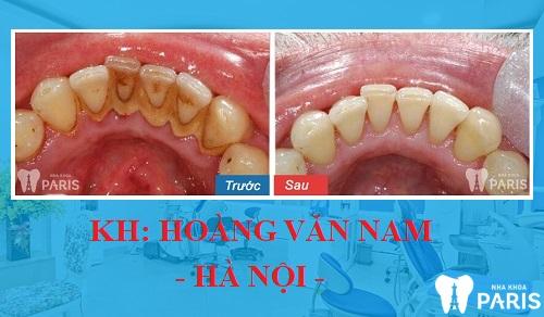 Tình trạng: Cao răng nhiều và đang có chiều hướng lan xuống phần nướu răng