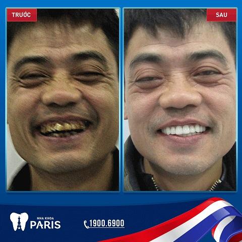 bọc răng sứ cho răng bị nhiễm tetracycline