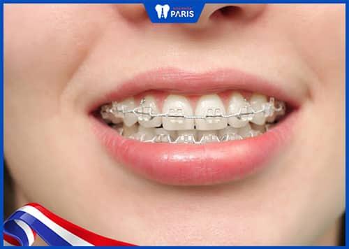 niềng răng đau cỡ nào