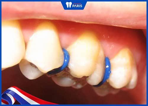 Đặt thun tách kẽ đau răng