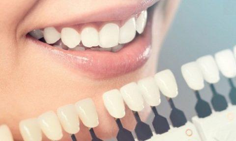 làm răng sứ trả góp ở tphcm
