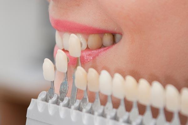 làm răng sứ trả góp tại tphcm