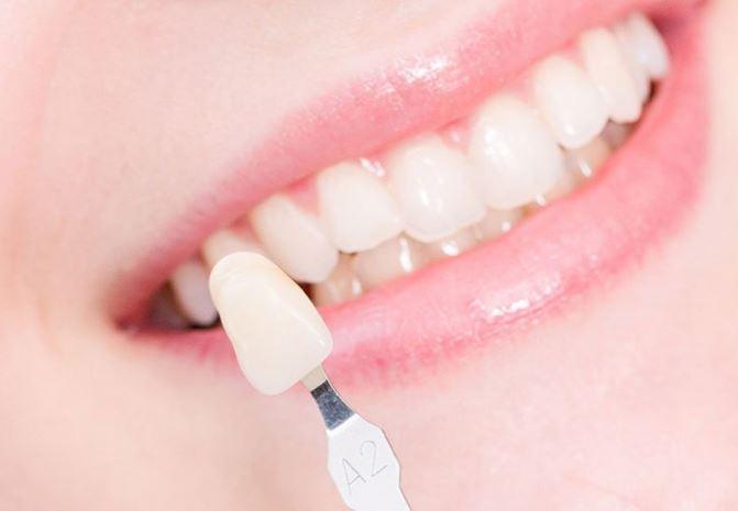 làm răng sứ trả góp tphcm