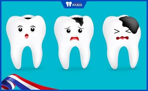 tại sao bị hôi miệng sau khi nhổ răng