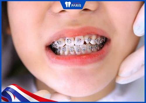 Niềng răng có đau không