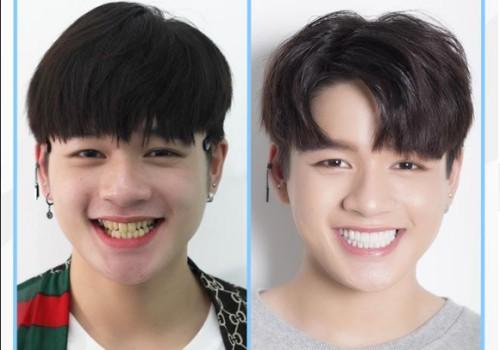 Thiết kế hàm răng để có nụ cười đẹp 3
