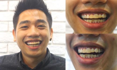 Cải thiện màu sắc của răng 1