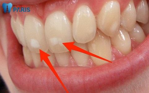 sâu răng cửa