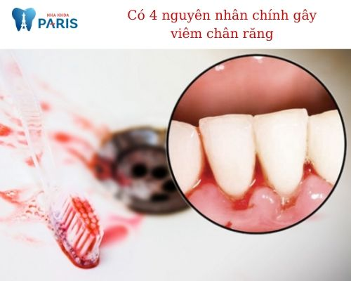 bệnh viêm chân răng