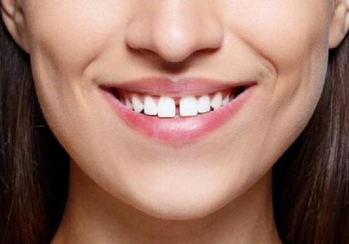 Hàm răng thưa thớt, nhiều kẽ hở răng