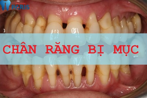 Chân răng bị mục kéo tụt phần lợi xuống phía dưới