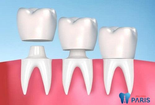 Bọc răng sứ giúp bảo vệ răng và phục hồi chức năng ăn nhai