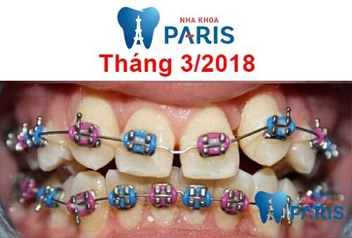 các giai đoạn niềng răng 1