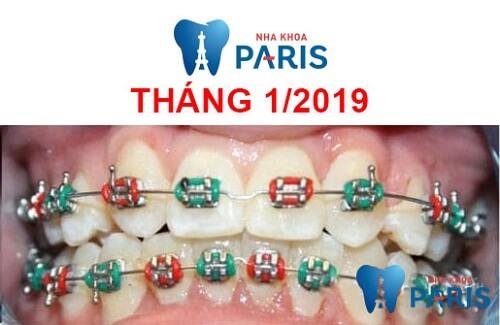 các giai đoạn niềng răng 4