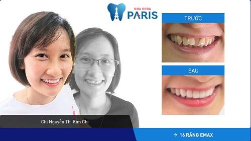 Tình trạng: Răng khấp khểnh + nhiễm màu kháng sinh nhẹ