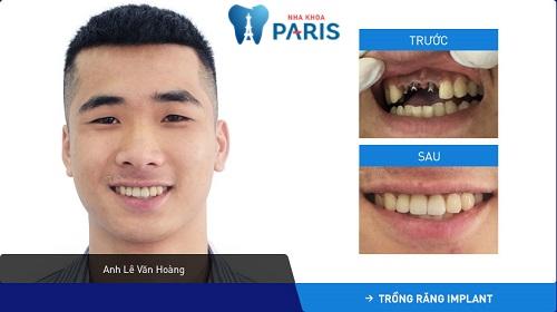 Tình trạng khách hàng: Mất 2 răng cửa