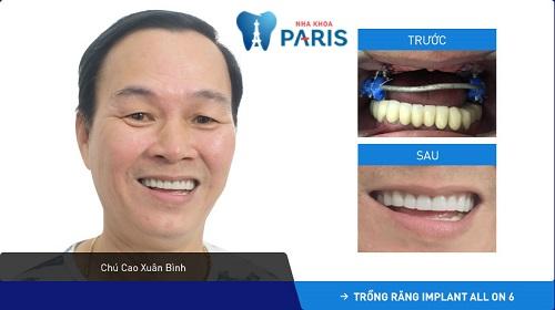 Tình trạng khách hàng: Mất răng toàn hàm trên