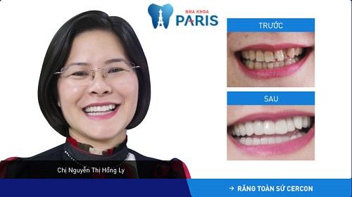 Tình trạng khách hàng: Răng nhiễm màu nặng + sứt mẻ răng cửa