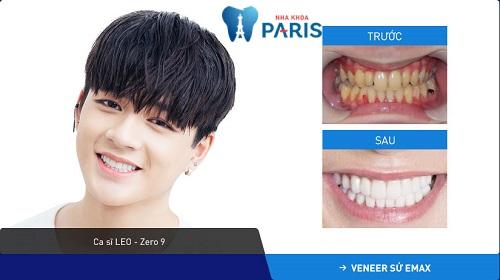 Tình trạng khách hàng: Răng mòn men + ố vàng nhẹ