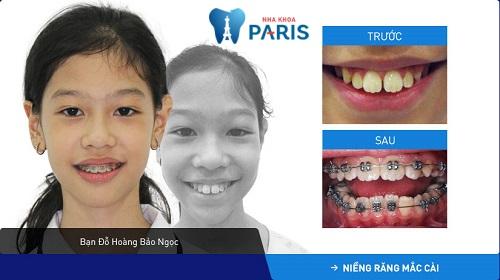 trước và sau khi Đỗ Hoàng Bảo Ngọc niềng răng thành công