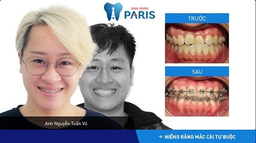 răng trước và sau khi niềng thành công của khách hàng nguyễn tuấn vũ