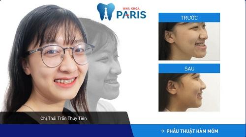 Tình trạng khách hàng: Móm hỗn hợp (do cả xương hàm và răng)