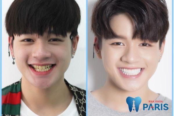 Leo trước và sau khi bọc răng sứ công nghệ Nano 5S