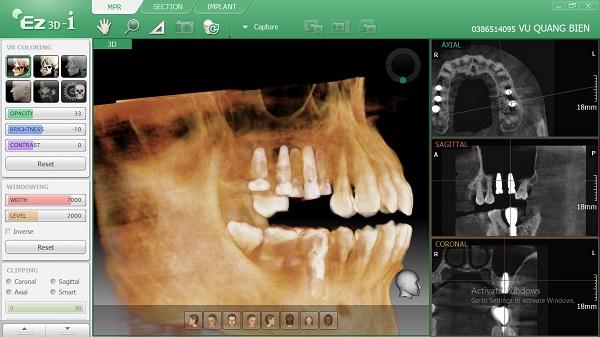 Hình ảnh răng khi trồng Implant thất bại