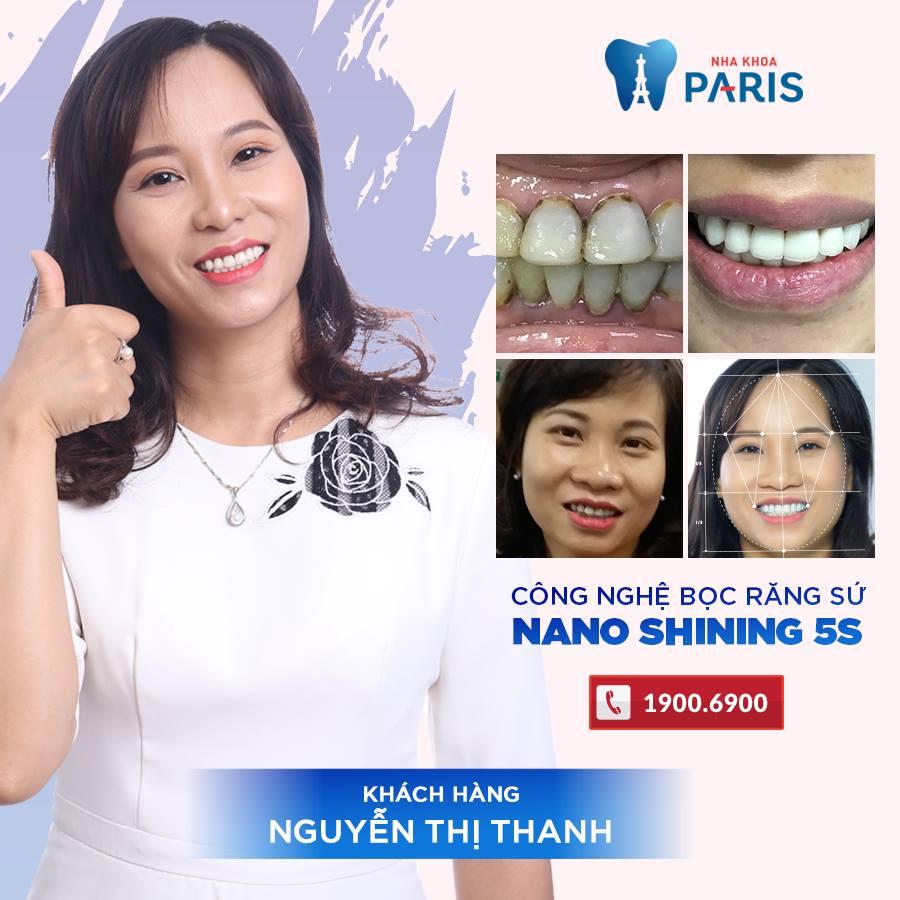 KH: Nguyễn Thị Thanh - Bọc răng sứ tại cơ sở 39 Quang Trung