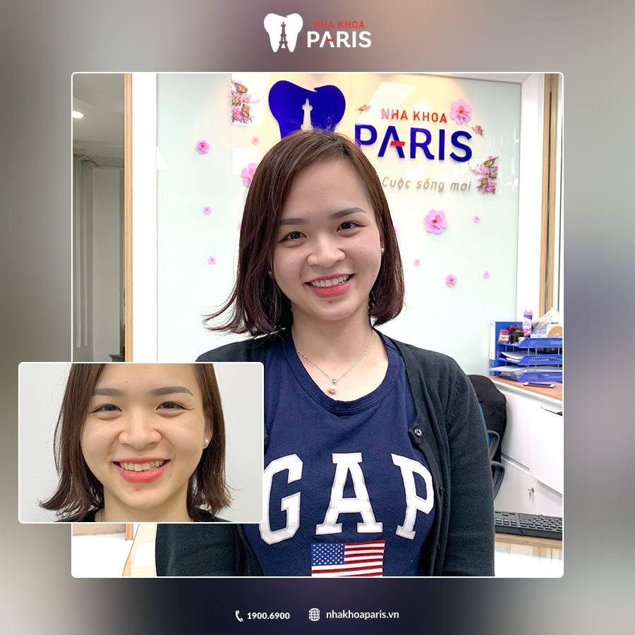 KH: Lưu Thị Mai - Bọc 20 răng sứ Nano 5S tại Nha khoa Paris 12 Thái Thịnh