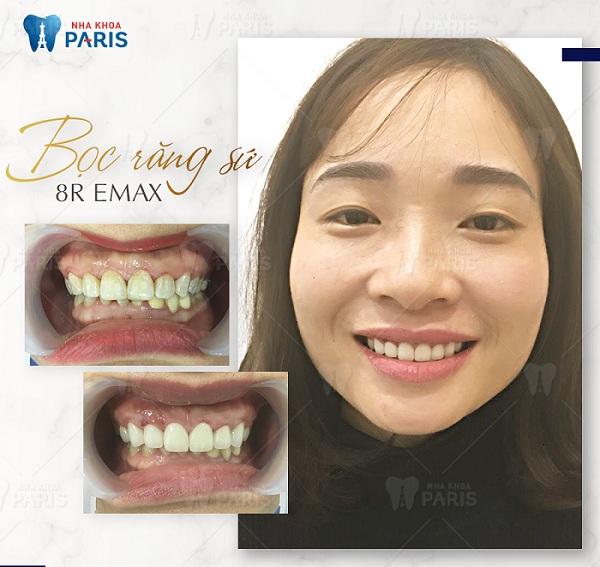 Khách hàng răng ố vàng, xỉn màu lấy lại nụ cười rạng rỡ sau khi bọc răng sứ.