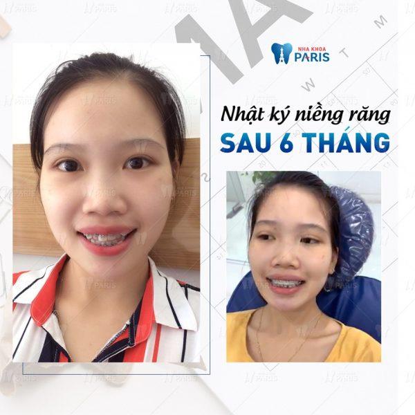 Trải nghiệm khách hàng: Hàng răng thẳng tắp chỉ sau 6 tháng niềng.
