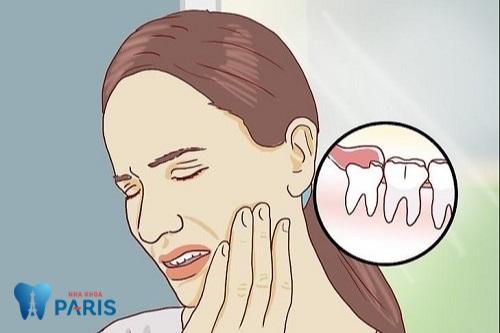 chi phí cắt lợi trùm răng khôn