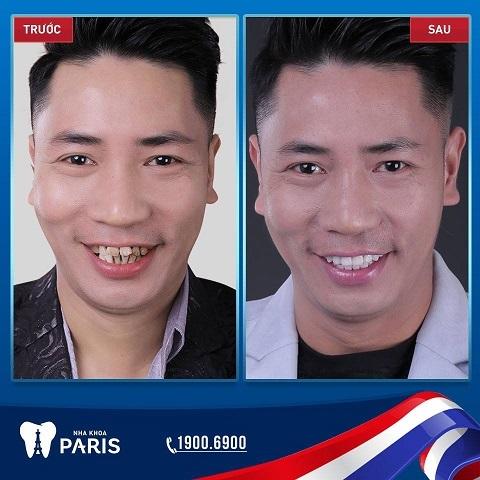 Hàm răng trắng sáng đều đặn sẽ khiến bạn tự tin hơn gấp nhiều lần