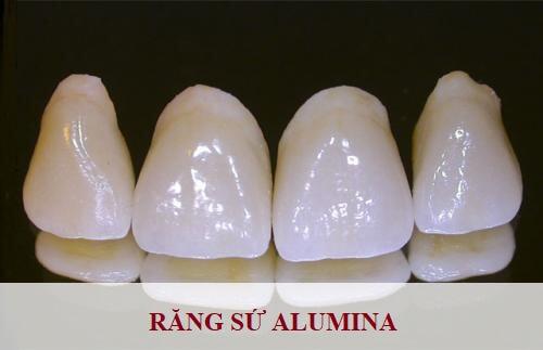 bọc răng sứ alumina, bọc răng sứ alumina có tốt không, bọc răng sứ alumina giá bao nhiêu